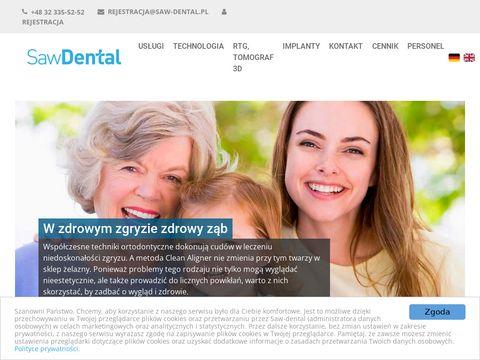 Saw-dental.pl stomatolog Gliwice