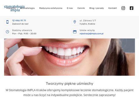 Impla.com.pl - dentysta Kraków